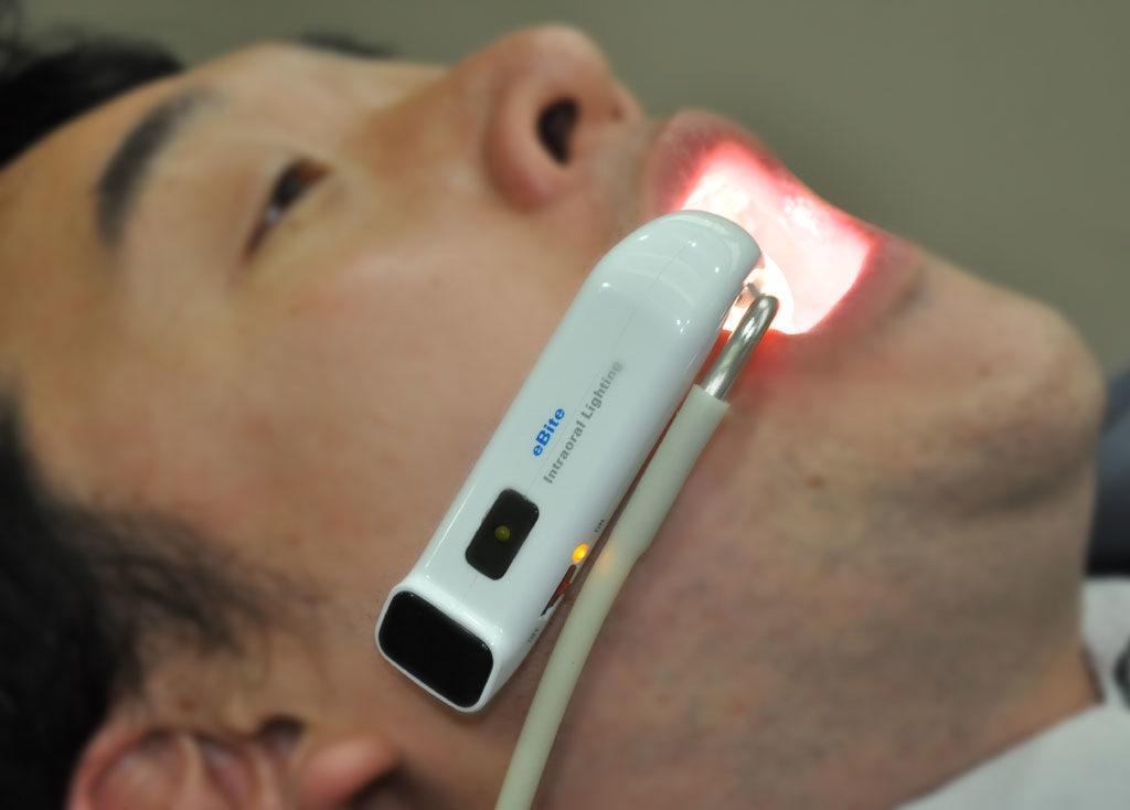 Фотоактивирующая дезинфекция полости рта