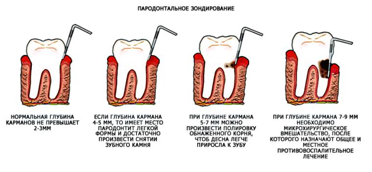 Лечение пародонтоза на разных стадиях