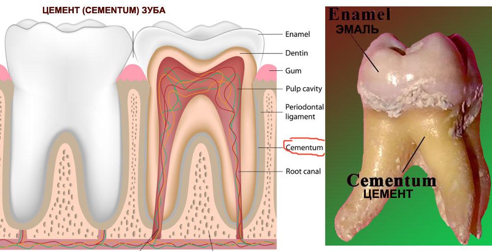 Зубной цемент