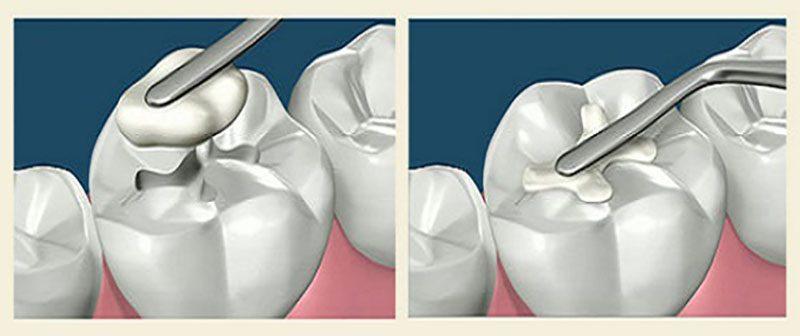 Стоматологические композиты