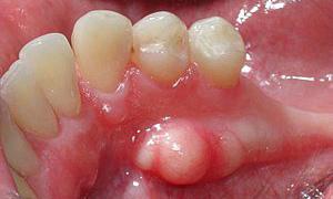 На нижней челюсти экзостоз развивается чаще всего со стороны языка