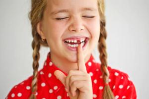 Неофит может развиться после удаления зуба