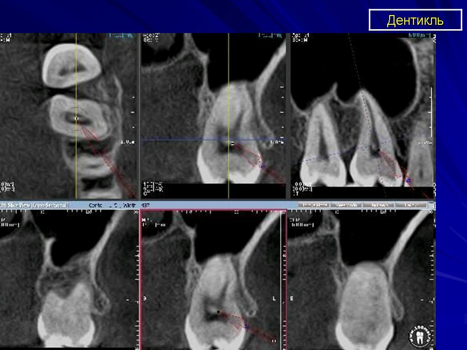 Дентикли на рентгене