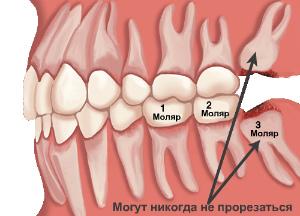 Моляры в челюсти