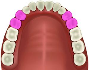 Расположение в челюсти