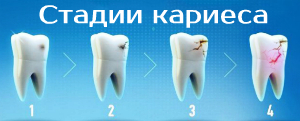 Главный враг стоматолога