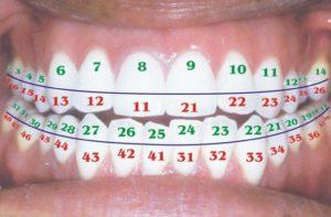 Нумерация зубов по разным системам