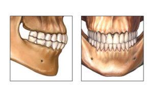 Челюсти с зубами