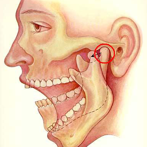 Сустав челюсти