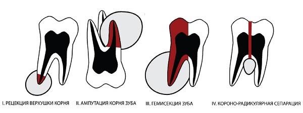 Различные виды зубосохраняющих операций