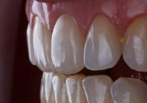 Фото зубов при увеличении