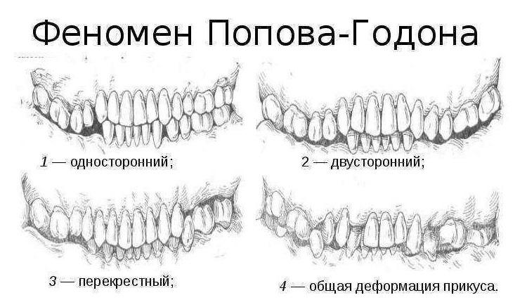 Виды деформации челюсти