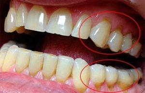 Клиновидный дефект на зубах