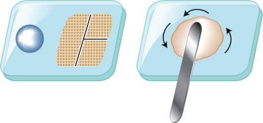Замешивание поликарбоксилатного цемента