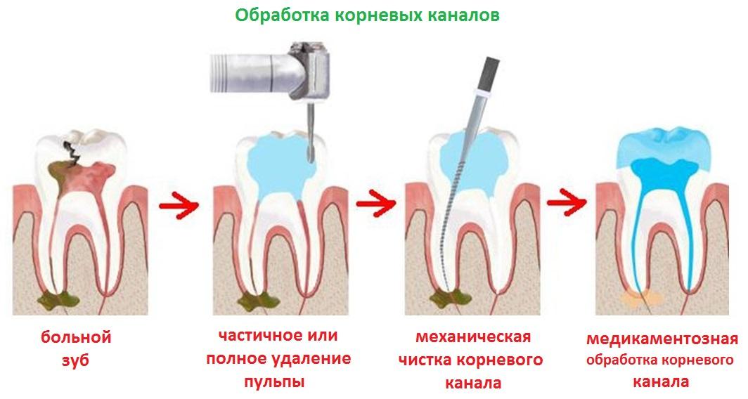 Обработка корневых каналов