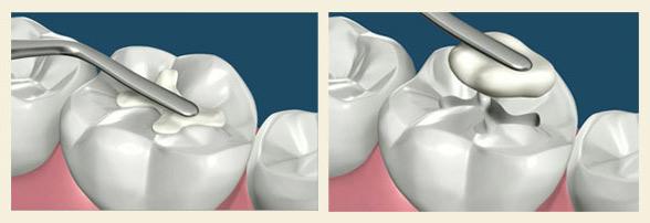 Пломбировка зуба