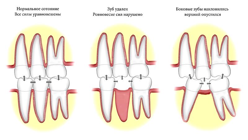 Деформация зубного ряда в результате удаления зуба