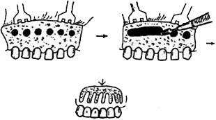 Схема компактостеотомии