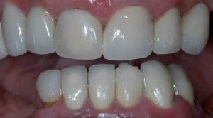 Отсутствие зубов с правой стороны челюсти