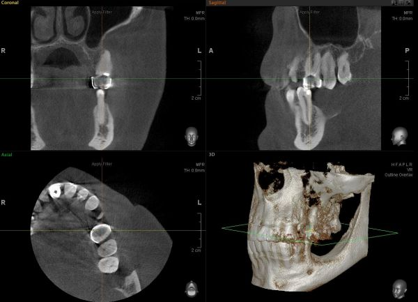 Трехмерное рентгенологическое исследование