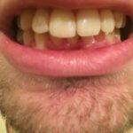выпирают зубы
