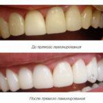до и после ламинирования