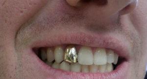 Золотой зуб