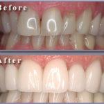 результат ламинации зубов