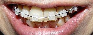 после брекетов разъехались зубы