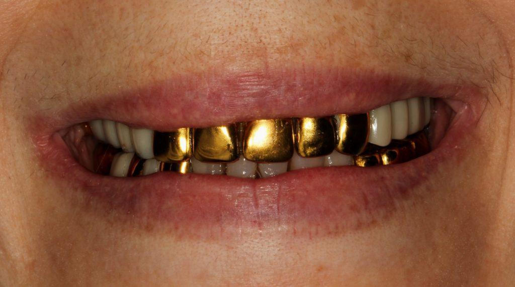 Вставные золотые зубы