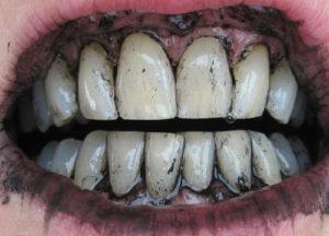 Приснился черный зуб