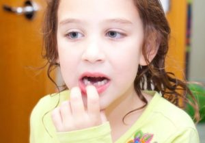 шатаются зубы у девочки