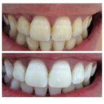 до и после процедуры Magic White