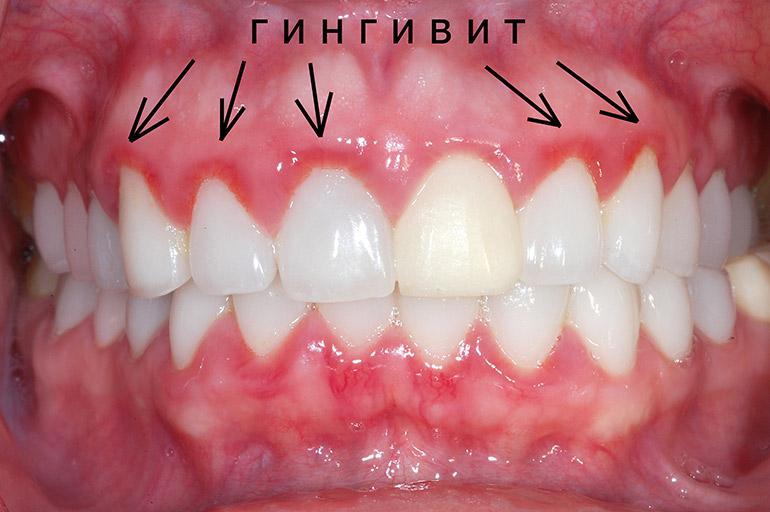 Гингивит - воспалительный процесс в деснах