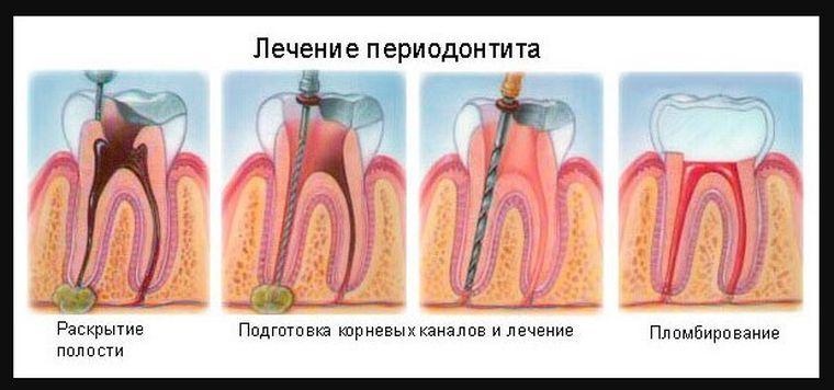 лечение периодонтита