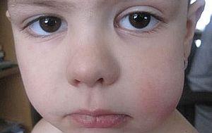 у ребенка опухла щека