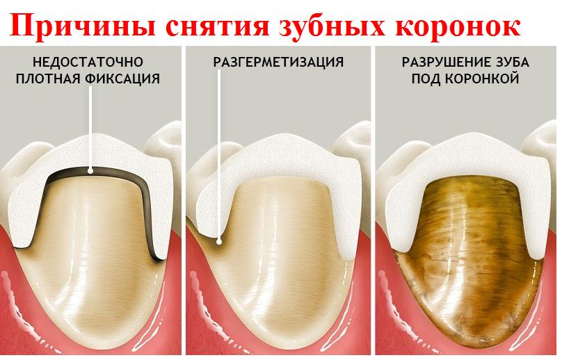 Снятие зубных коронок