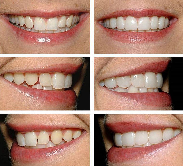 стачивание зубов