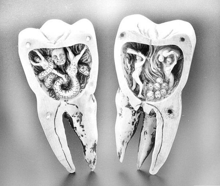 зубной червь