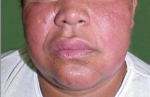 Синдром Мелькерссона-Розенталя