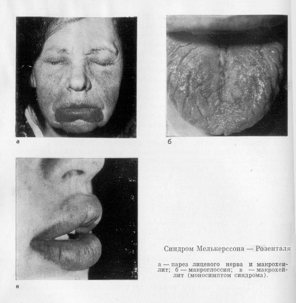 Симптомы синдрома Мелькерсона-Розенталя