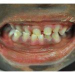 синдром аблефарон-макростомия