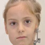 асимметрия лица у ребенка
