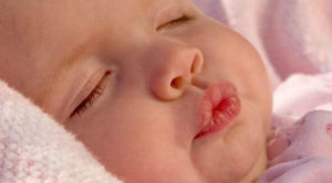 Сухие губы у младенца