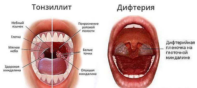 Дифтерия и тонзиллит