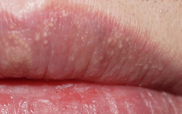 Жировики на губах