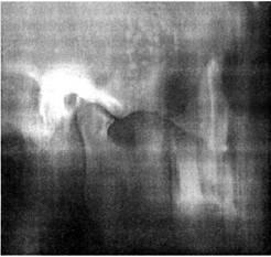 Томограмма артрита ВНЧС