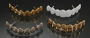 металлы и сплавы в стоматологии