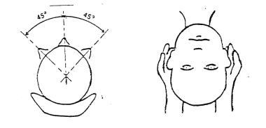 Положение головы пациента