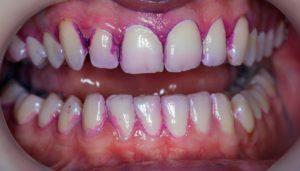 Окрашивание зубов при использовании средства